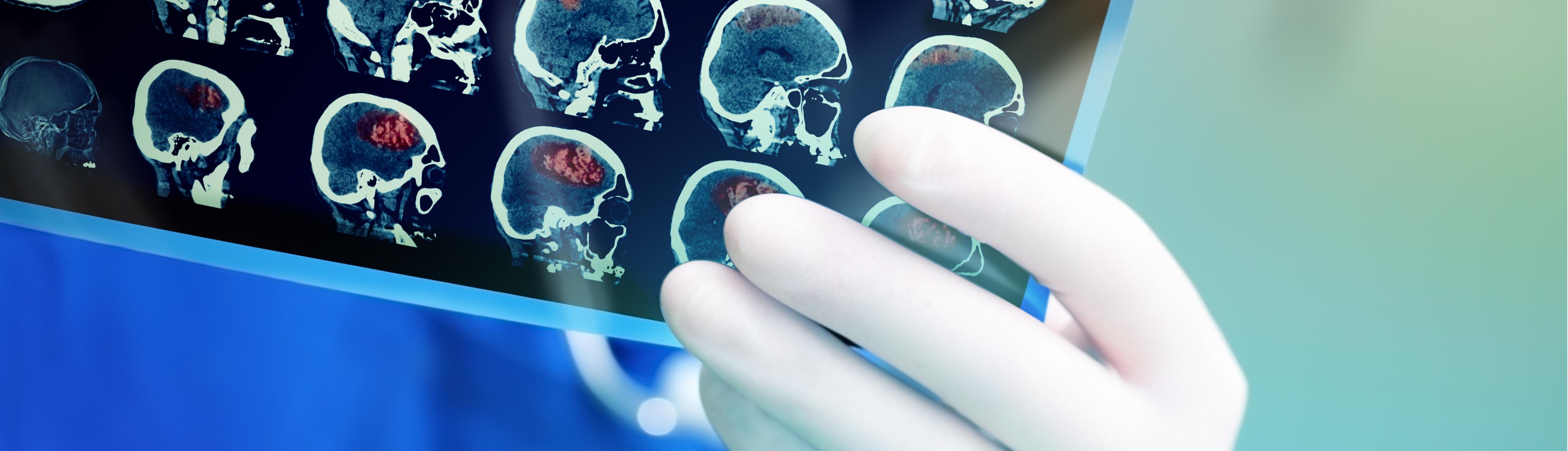 PET Scan Imaging at Pullman Regional Hospital