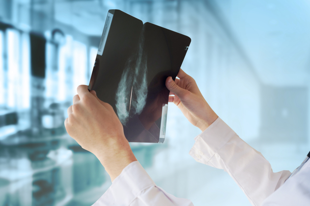 3D Mammography Q&A with Dr. Lloyd