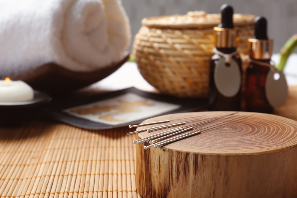 Acupuncture 101: What You Need to Know Before Starting Acupuncture